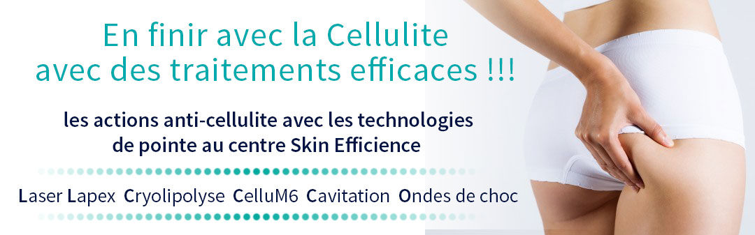 Les traitements anti-cellulite au centre skin efficience Laser Lapex Cryolypolise cavitation ondes de choc