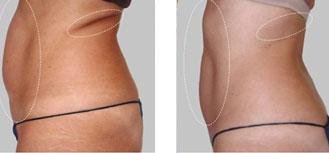 Cryolipolyse femme avant et après